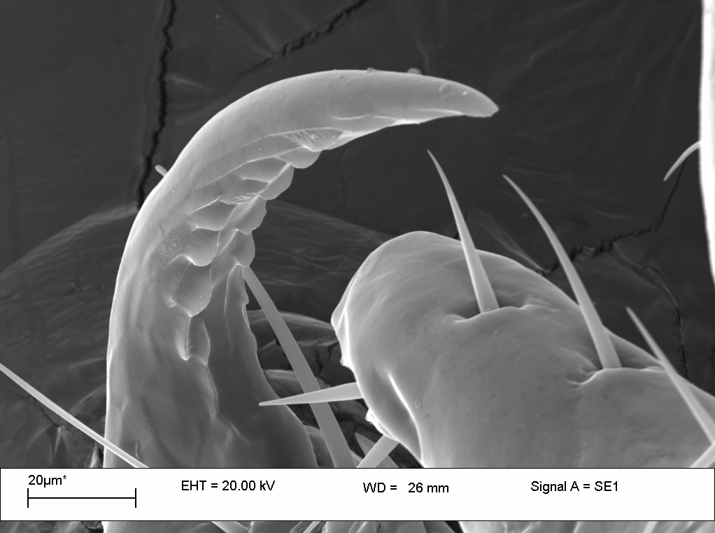 Photo of a head lice claw using SEM