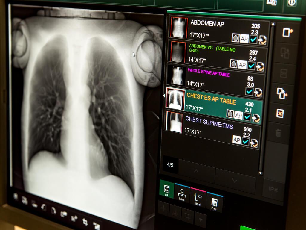 Monitors displaying x-ray results