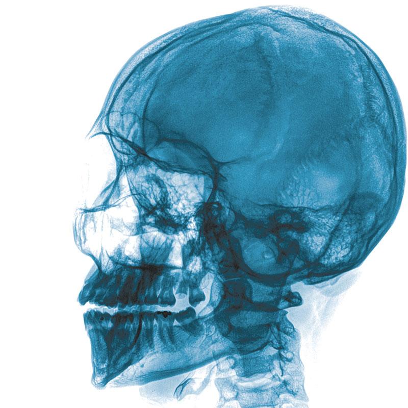 X-Ray of a Skull