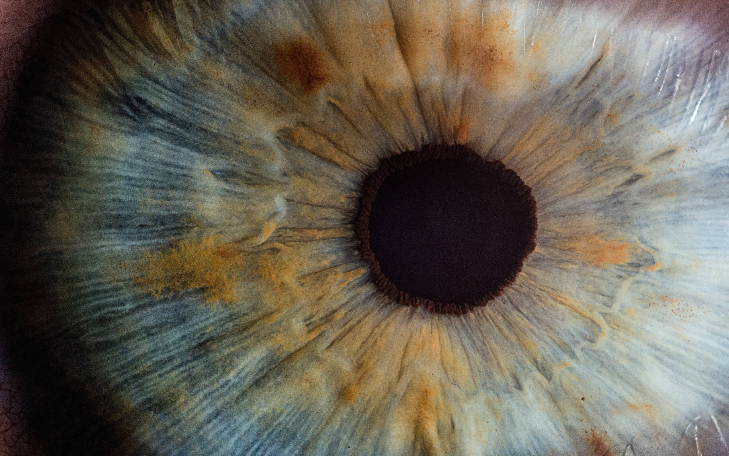 A close up photo of an eye